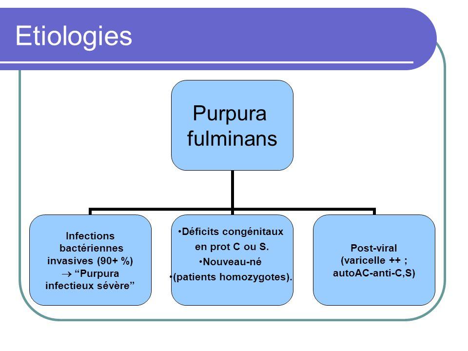 Etiologies Purpura fulminans Infections bactériennes invasives (90+ %) Purpura infectieux sévère Déficits congénitaux en prot C ou S. Nouveau-né (pati
