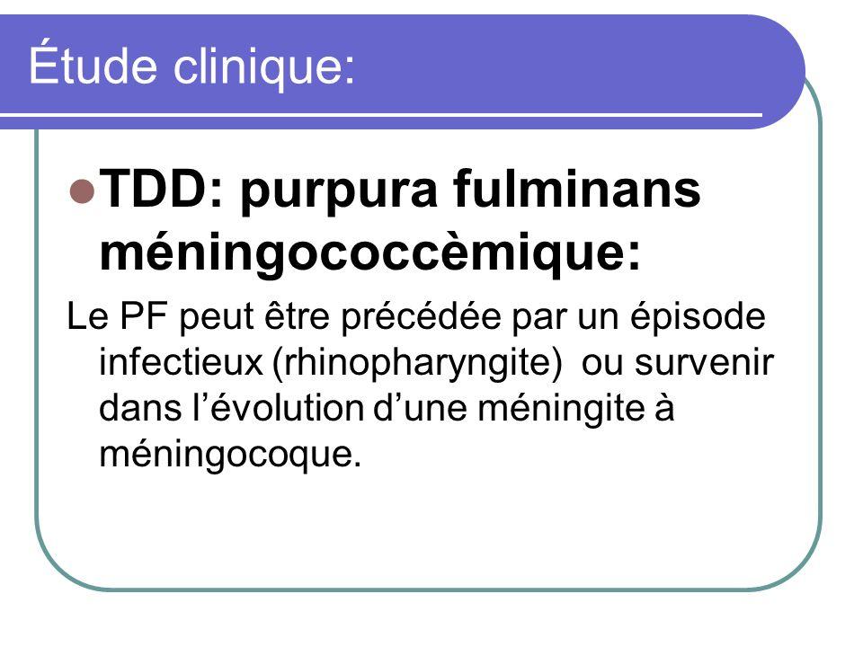 Étude clinique: TDD: purpura fulminans méningococcèmique: Le PF peut être précédée par un épisode infectieux (rhinopharyngite) ou survenir dans lévolu