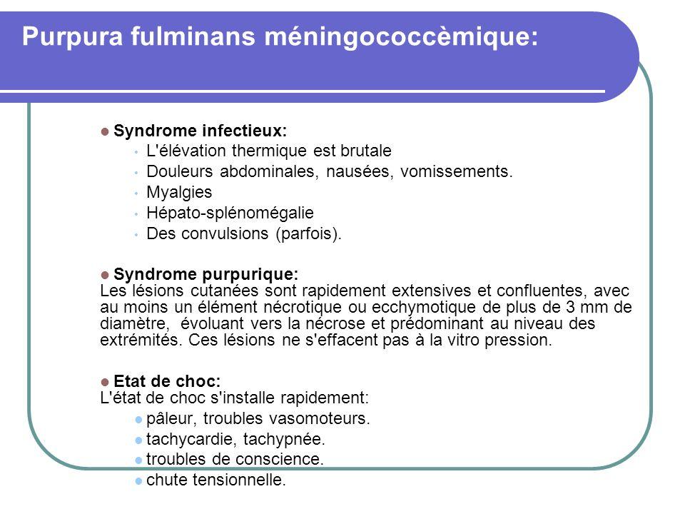 Purpura fulminans méningococcèmique: Syndrome infectieux: L'élévation thermique est brutale Douleurs abdominales, nausées, vomissements. Myalgies Hépa