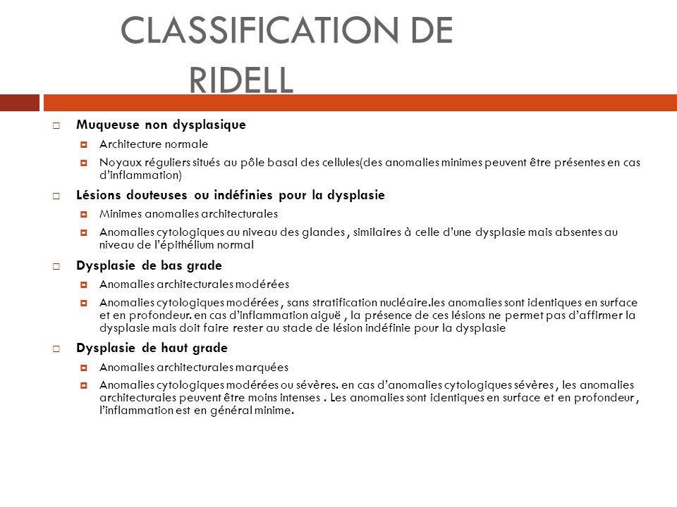 CLASSIFICATION DE RIDELL Muqueuse non dysplasique Architecture normale Noyaux réguliers situés au pôle basal des cellules(des anomalies minimes peuven
