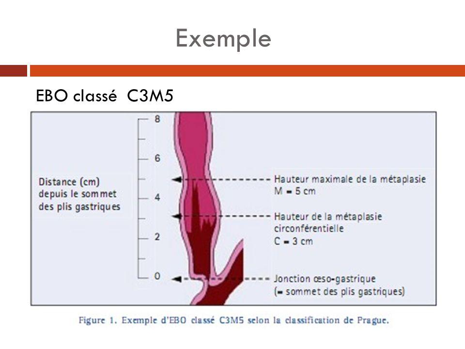 Récapitulatif évènementsTypes de changementsUtilité diagnostique COX-2Augmentation de lexpression, résulats dans aug de langiogenèse et la baisse de lapoptose .