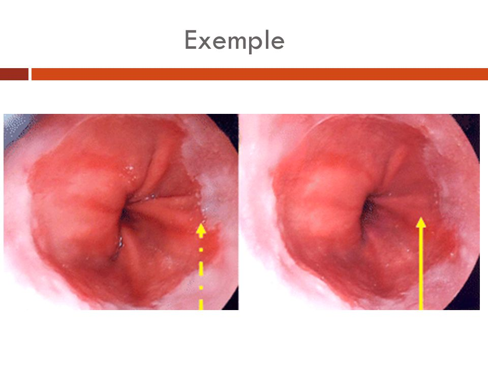 Diagnostic histologique Remplacement de lépithélium malphigien œsophagien par un épithélium glandulaire comportant ou non une métaplasie intestinale.