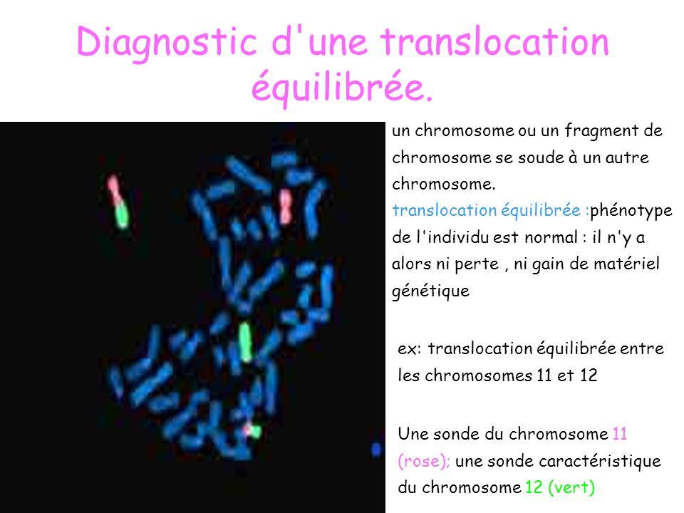 Diagnostic d'une translocation équilibrée. un chromosome ou un fragment de chromosome se soude à un autre chromosome. translocation équilibrée :phénot