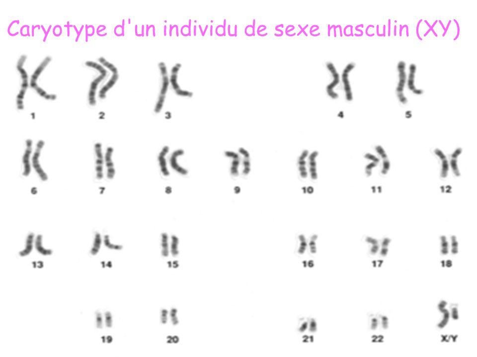 Caryotype d'un individu de sexe masculin (XY)