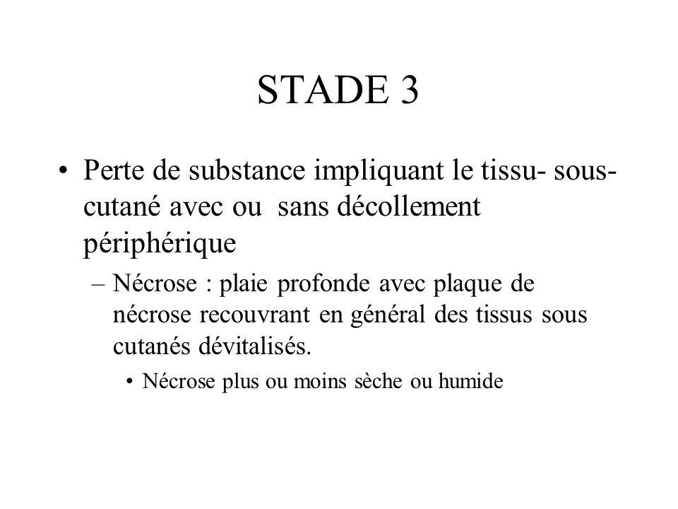 STADE 3 Perte de substance impliquant le tissu- sous- cutané avec ou sans décollement périphérique –Nécrose : plaie profonde avec plaque de nécrose re
