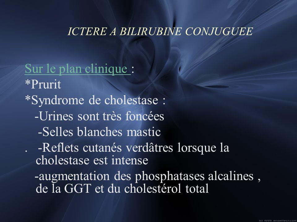 ICTERE A BILIRUBINE CONJUGUEE Sur le plan clinique : *Prurit *Syndrome de cholestase : -Urines sont très foncées -Selles blanches mastic. -Reflets cut