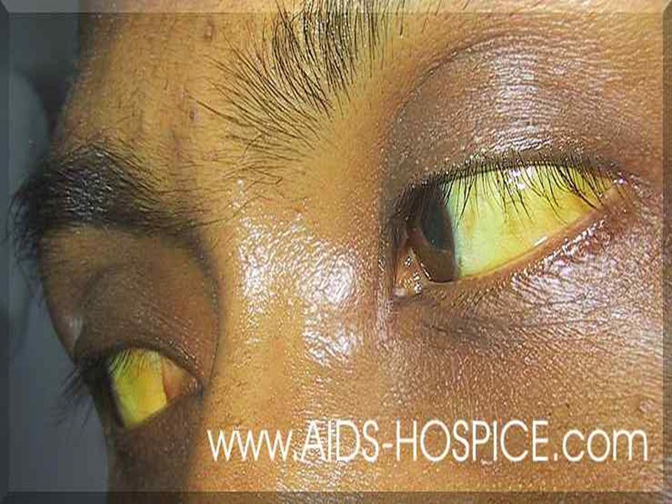 ICTERE A BILIRUBINE CONJUGUEE Sur le plan clinique : *Prurit *Syndrome de cholestase : -Urines sont très foncées -Selles blanches mastic.