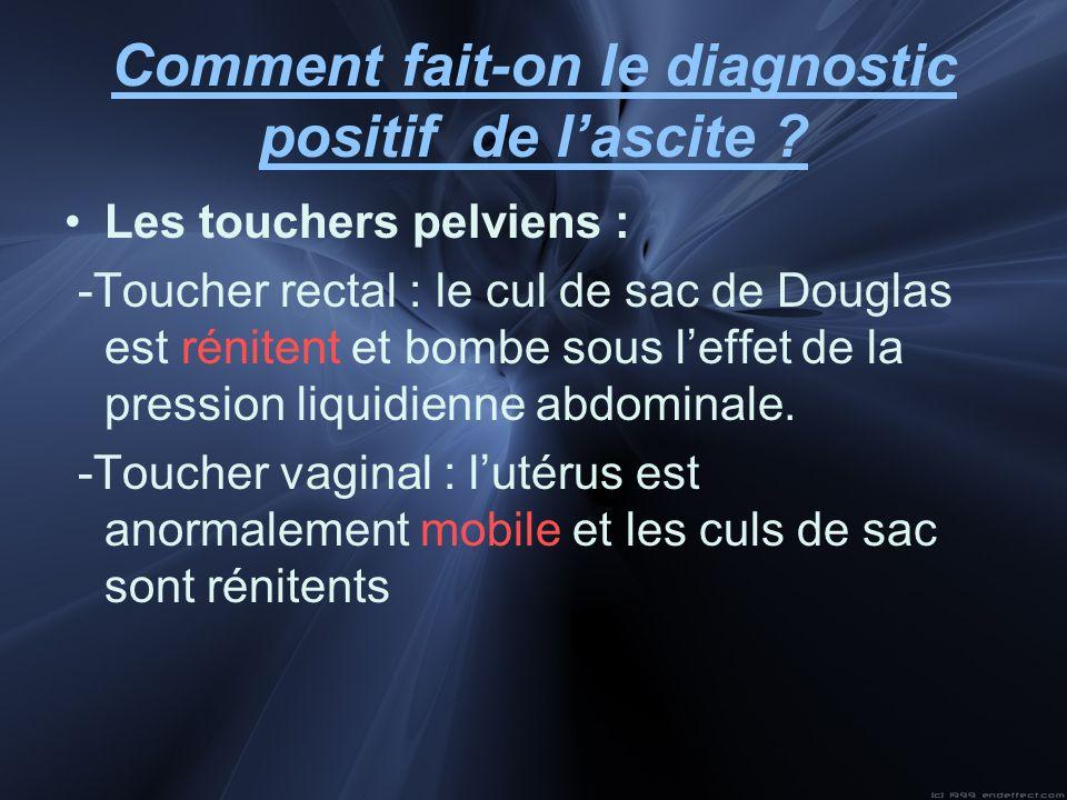 Comment fait-on le diagnostic positif de lascite ? Les touchers pelviens : -Toucher rectal : le cul de sac de Douglas est rénitent et bombe sous leffe