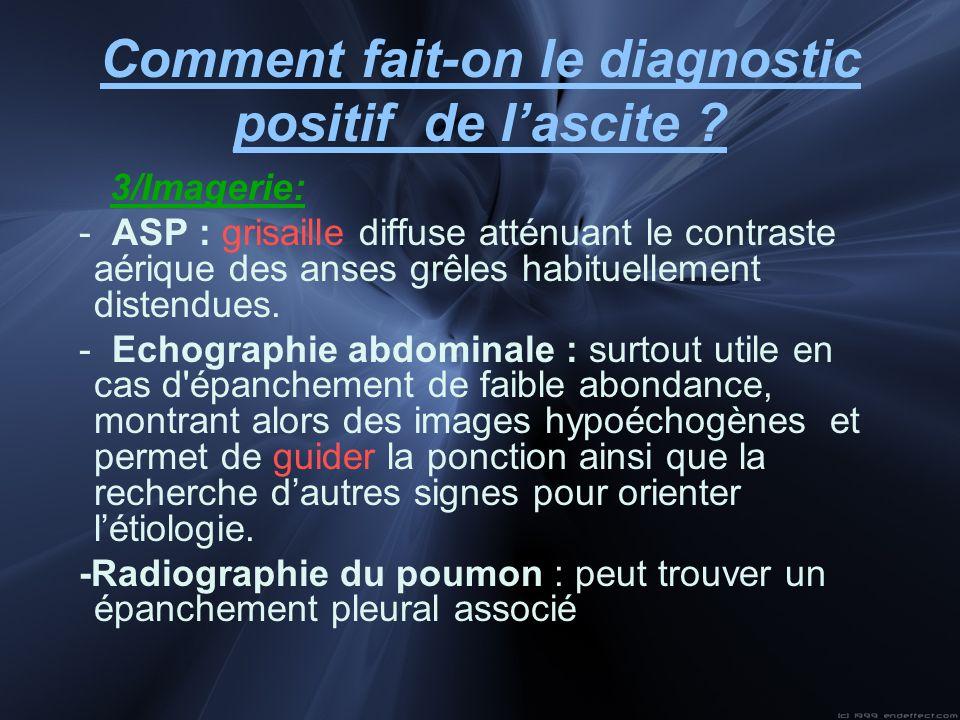 Comment fait-on le diagnostic positif de lascite ? 3/Imagerie: - ASP : grisaille diffuse atténuant le contraste aérique des anses grêles habituellemen