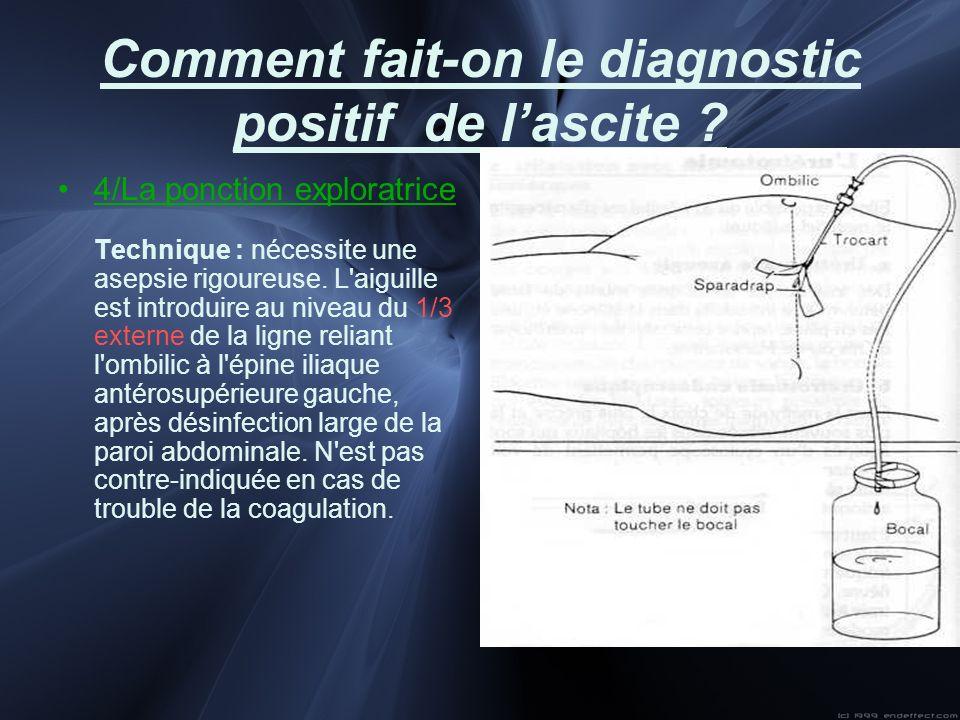 Comment fait-on le diagnostic positif de lascite ? 4/La ponction exploratrice Technique : nécessite une asepsie rigoureuse. L'aiguille est introduire