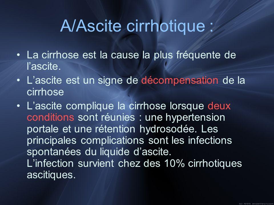 La cirrhose est la cause la plus fréquente de lascite. Lascite est un signe de décompensation de la cirrhose Lascite complique la cirrhose lorsque deu
