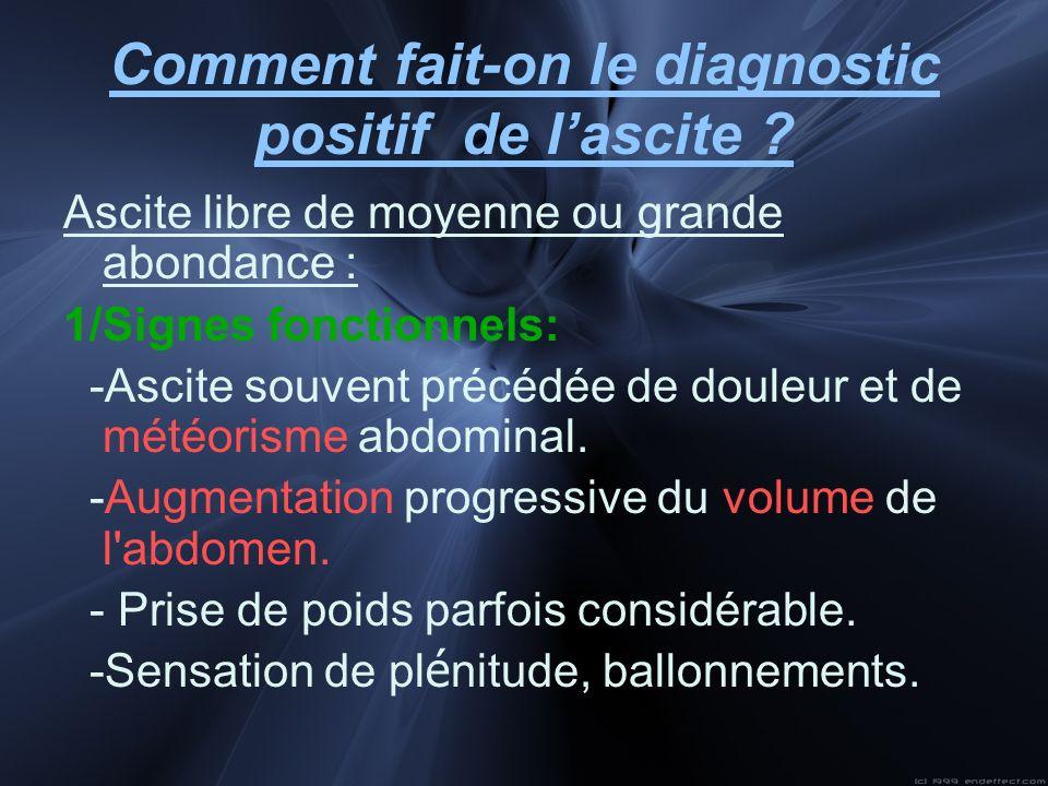 Comment fait-on le diagnostic positif de lascite ? Ascite libre de moyenne ou grande abondance : 1/Signes fonctionnels: -Ascite souvent précédée de do