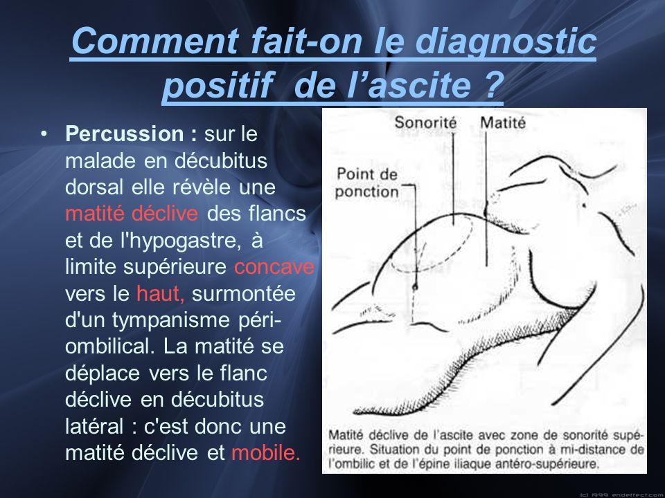 Comment fait-on le diagnostic positif de lascite ? Percussion : sur le malade en décubitus dorsal elle révèle une matité déclive des flancs et de l'hy