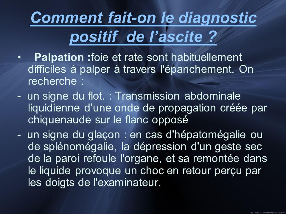 Comment fait-on le diagnostic positif de lascite ? Palpation :foie et rate sont habituellement difficiles à palper à travers l'épanchement. On recherc