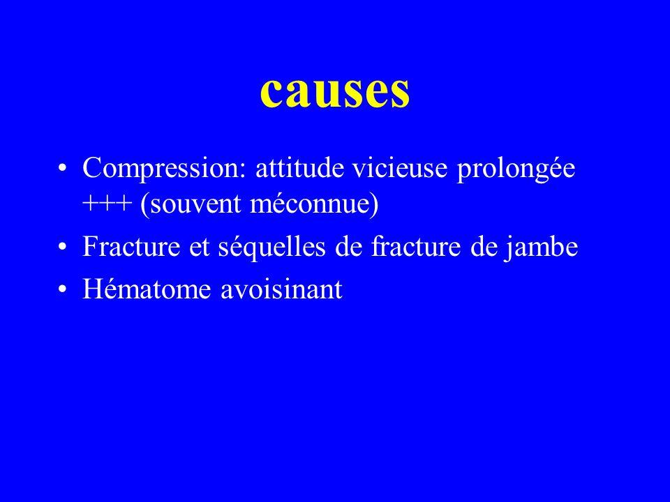 causes Compression: attitude vicieuse prolongée +++ (souvent méconnue) Fracture et séquelles de fracture de jambe Hématome avoisinant