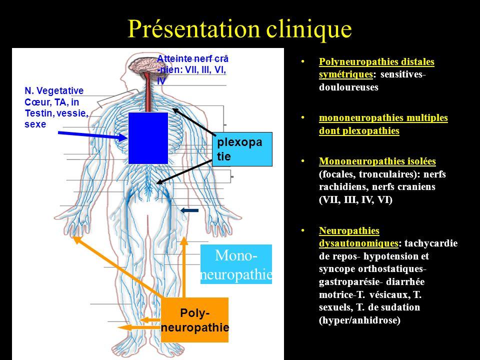 Présentation clinique Polyneuropathies distales symétriques: sensitives- douloureuses mononeuropathies multiples dont plexopathies Mononeuropathies is