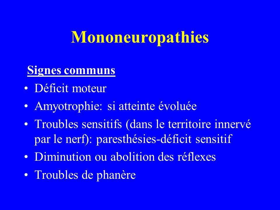 Mononeuropathies Signes communs Déficit moteur Amyotrophie: si atteinte évoluée Troubles sensitifs (dans le territoire innervé par le nerf): paresthés