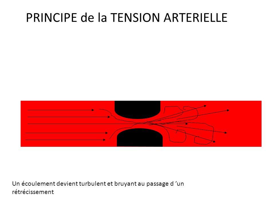 PRINCIPE de la TENSION ARTERIELLE Un écoulement laminaire est silencieux ARTERE
