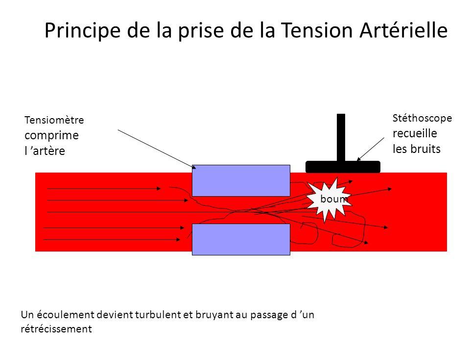 PRINCIPE de la TENSION ARTERIELLE Un écoulement devient turbulent et bruyant au passage d un rétrécissement