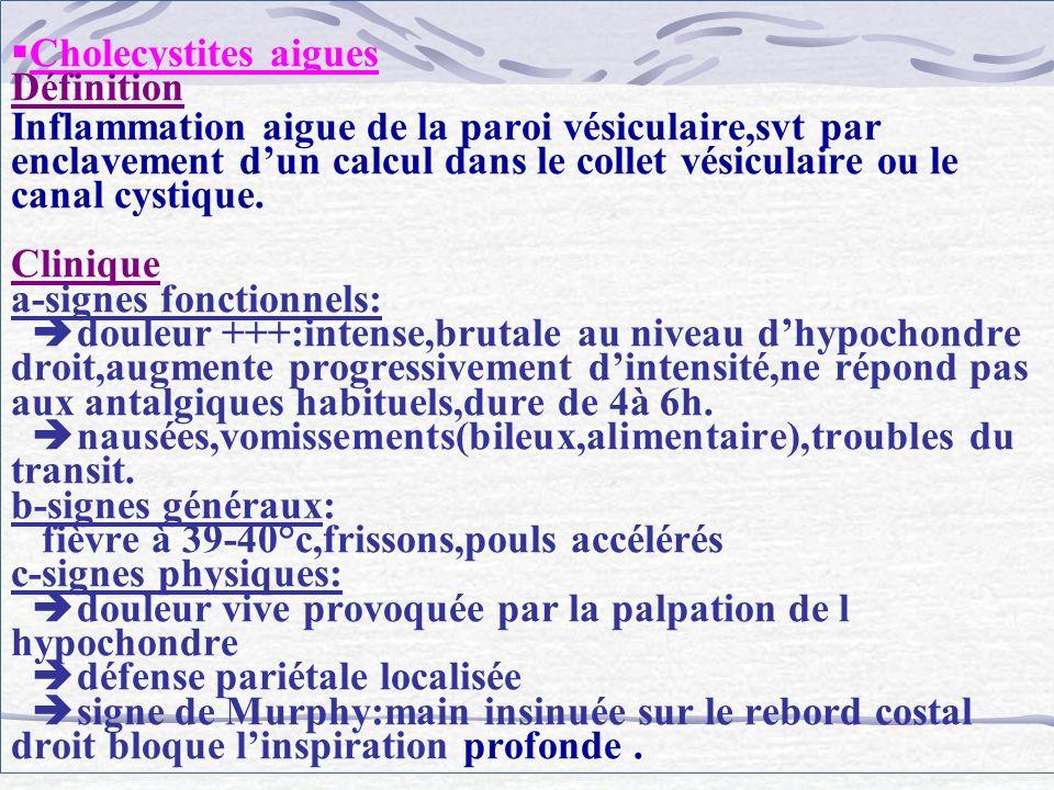 Cholecystites aigues Définition Inflammation aigue de la paroi vésiculaire,svt par enclavement dun calcul dans le collet vésiculaire ou le canal cysti