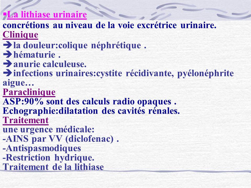 La lithiase urinaire concrétions au niveau de la voie excrétrice urinaire. Clinique la douleur:colique néphrétique. hématurie. anurie calculeuse. infe