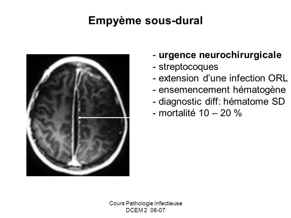 Cours Pathologie Infectieuse DCEM 2 06-07 Empyème sous-dural - urgence neurochirurgicale - streptocoques - extension dune infection ORL - ensemencemen