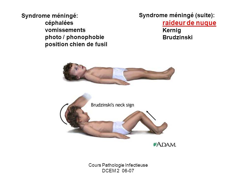 Cours Pathologie Infectieuse DCEM 2 06-07 Syndrome méningé: céphalées vomissements photo / phonophobie position chien de fusil Syndrome méningé (suite