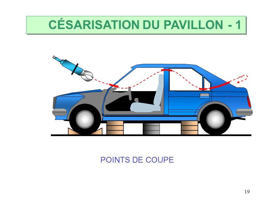 19 CÉSARISATION DU PAVILLON POINTS DE COUPE - 1