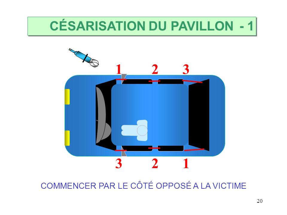 20 123 321 COMMENCER PAR LE CÔTÉ OPPOSÉ A LA VICTIME CÉSARISATION DU PAVILLON - 1