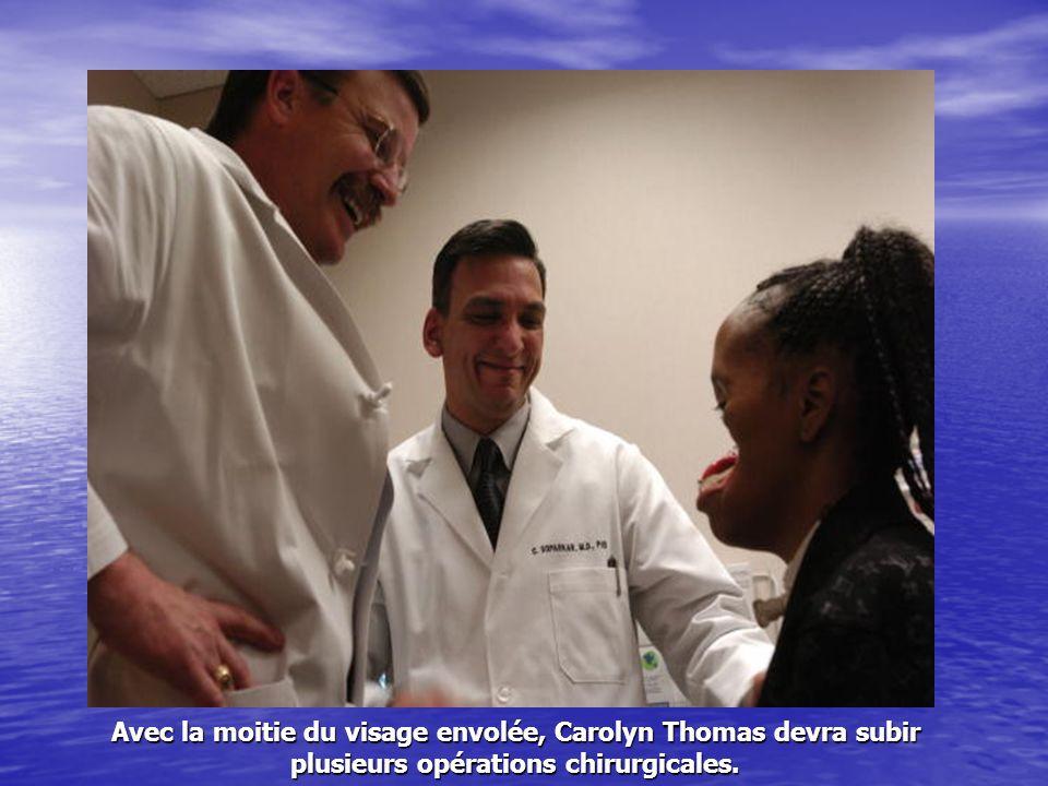 Avec la moitie du visage envolée, Carolyn Thomas devra subir plusieurs opérations chirurgicales.