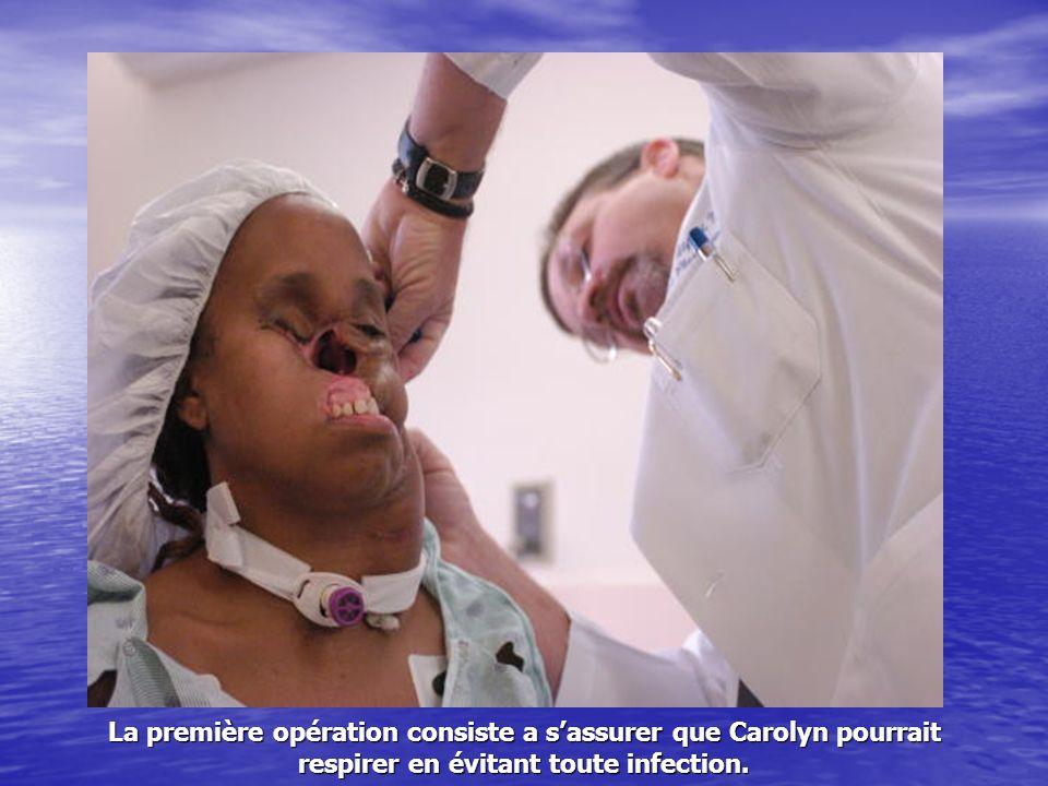 La première opération consiste a sassurer que Carolyn pourrait respirer en évitant toute infection.