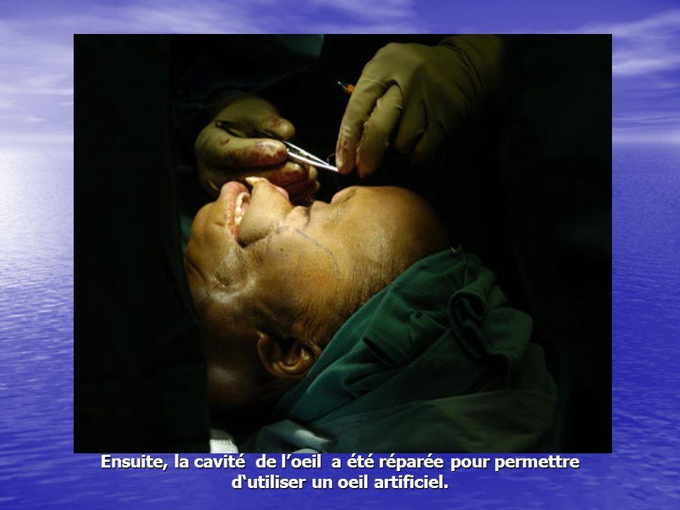 Ensuite, la cavité de loeil a été réparée pour permettre dutiliser un oeil artificiel.