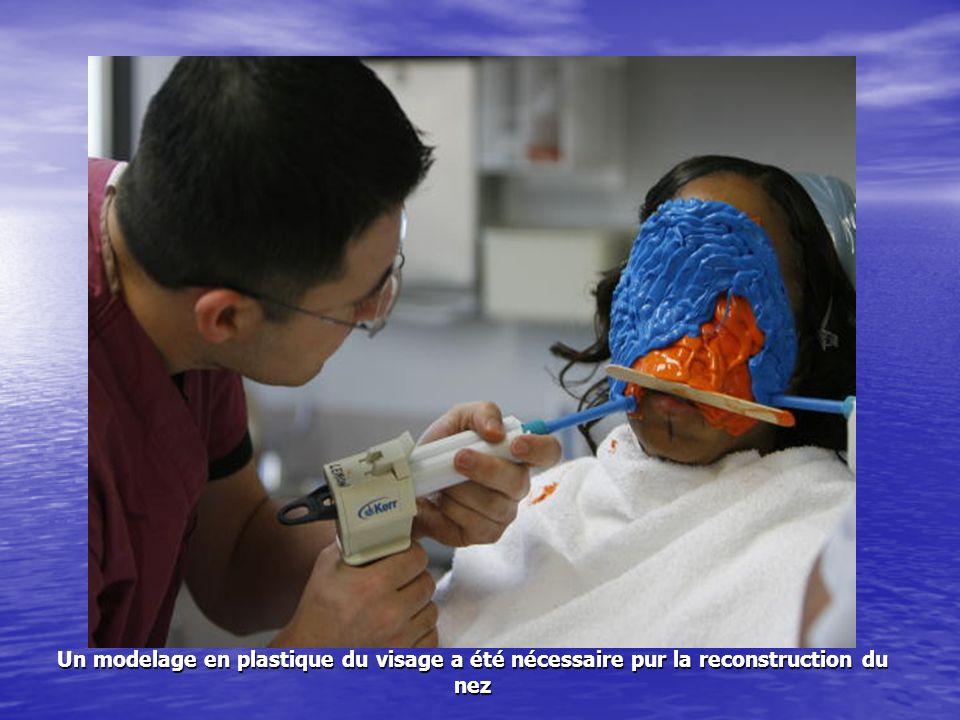 Un modelage en plastique du visage a été nécessaire pur la reconstruction du nez