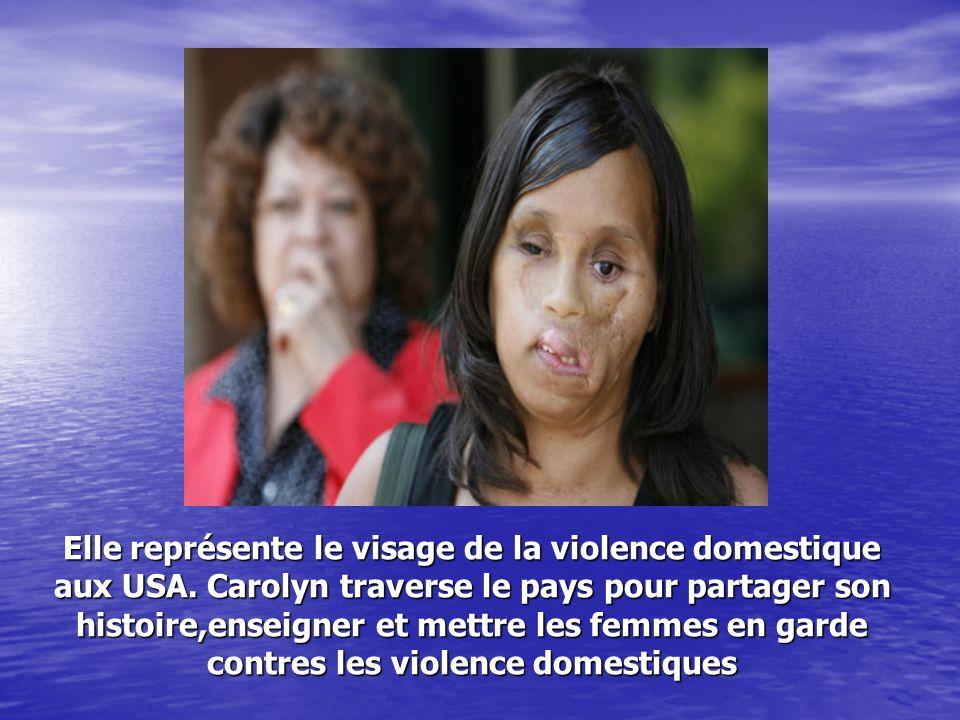 Elle représente le visage de la violence domestique aux USA.