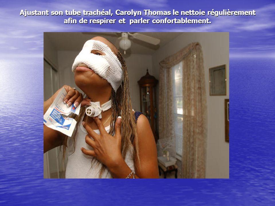 La zone du nez a été faite en matière synthétique évitant ainsi les irritations ce qui permettra une meilleure respiration a Carolyn.