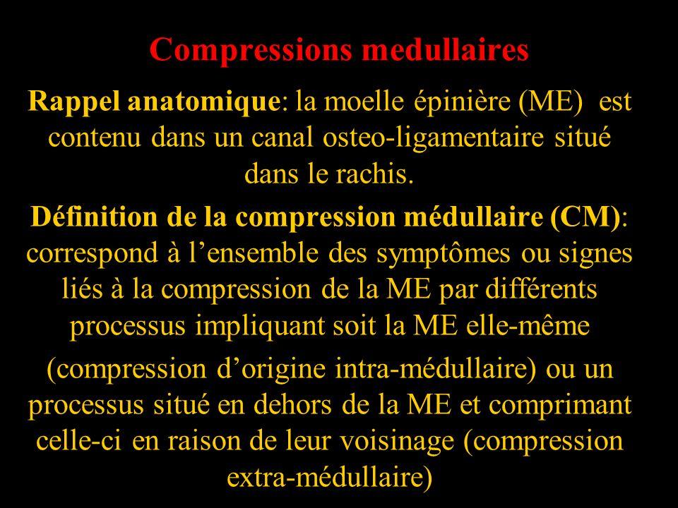 Compressions medullaires Rappel anatomique: la moelle épinière (ME) est contenu dans un canal osteo-ligamentaire situé dans le rachis. Définition de l