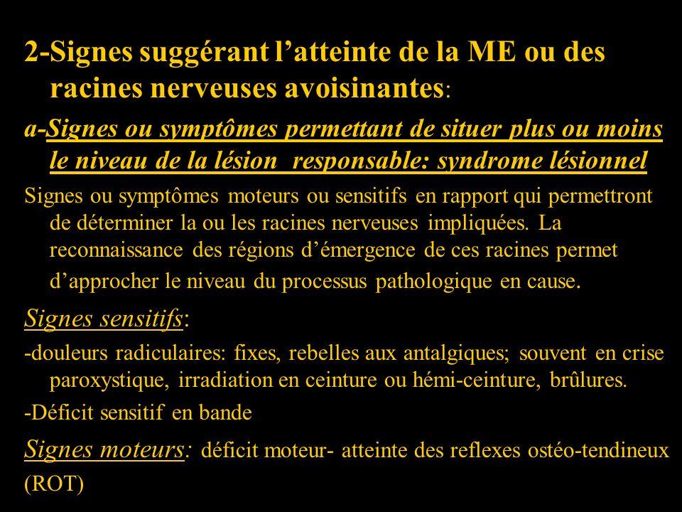 2-Signes suggérant latteinte de la ME ou des racines nerveuses avoisinantes : a-Signes ou symptômes permettant de situer plus ou moins le niveau de la