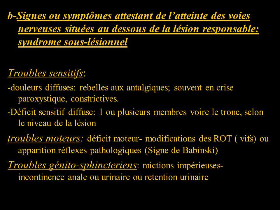 b-Signes ou symptômes attestant de latteinte des voies nerveuses situées au dessous de la lésion responsable: syndrome sous-lésionnel Troubles sensiti