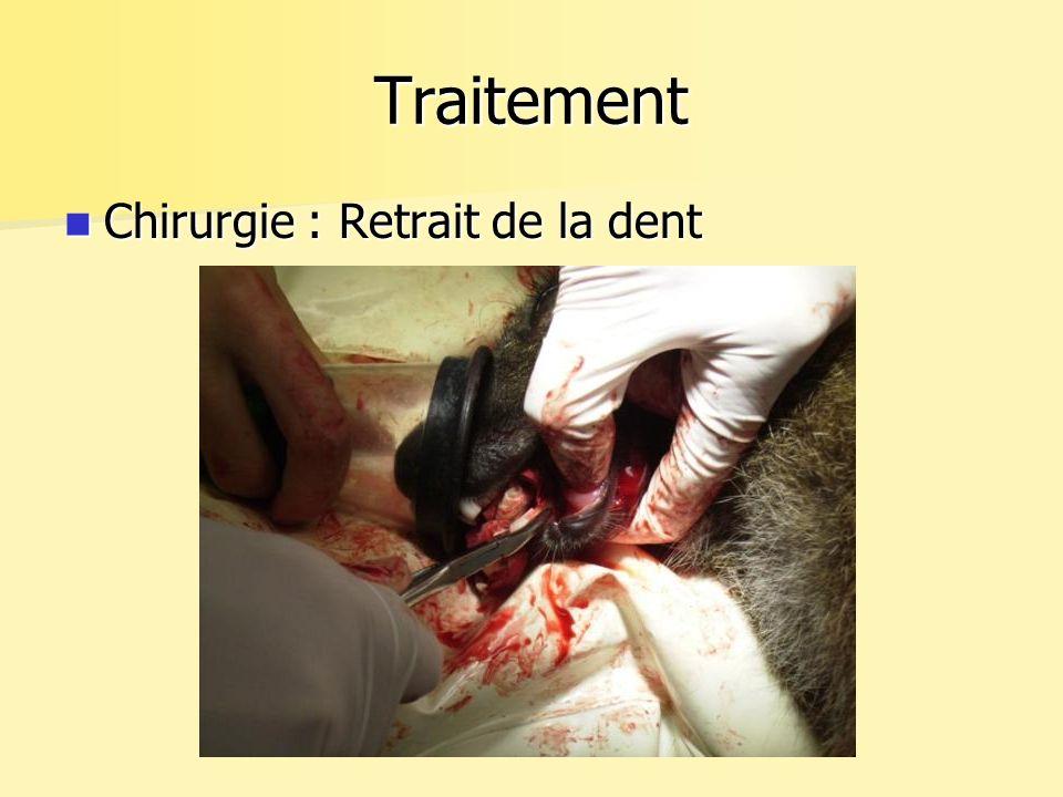 Traitement Chirurgie : Retrait de la dent Chirurgie : Retrait de la dent