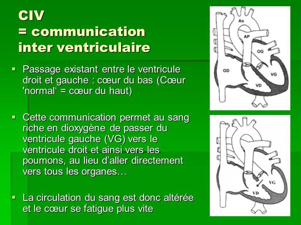 CIV = communication inter ventriculaire Passage existant entre le ventricule droit et gauche : cœur du bas (Cœur 'normal = cœur du haut) Passage exist