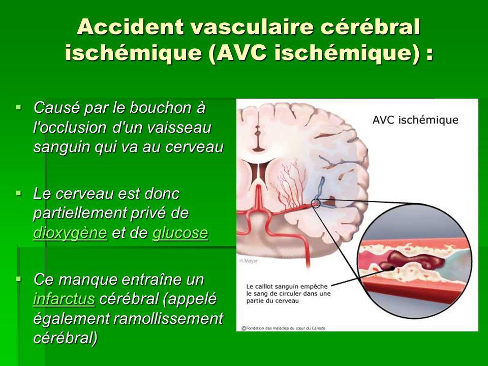 Accident vasculaire cérébral ischémique (AVC ischémique) : Causé par le bouchon à l'occlusion d'un vaisseau sanguin qui va au cerveau Causé par le bou