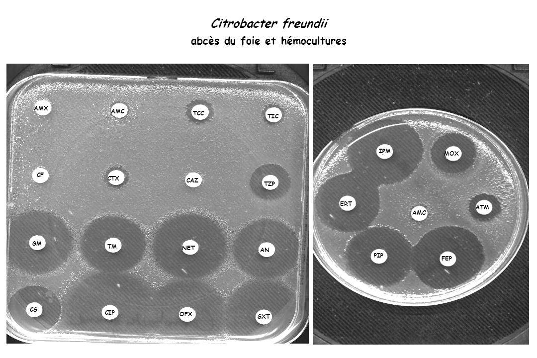 Citrobacter freundii abcès du foie et hémocultures TIC TCC TZP NET AN TM OFX CS SXT CIP IPM MOX ATM FEP AMC PIP ERT AMX TIC TCC TZP NET AN TM OFX CS SXT CIP IPM MOX ATM FEP AMC PIP ERT AMC CAZ CF CTX GM Après 3 semaines de traitement par Tiénam …