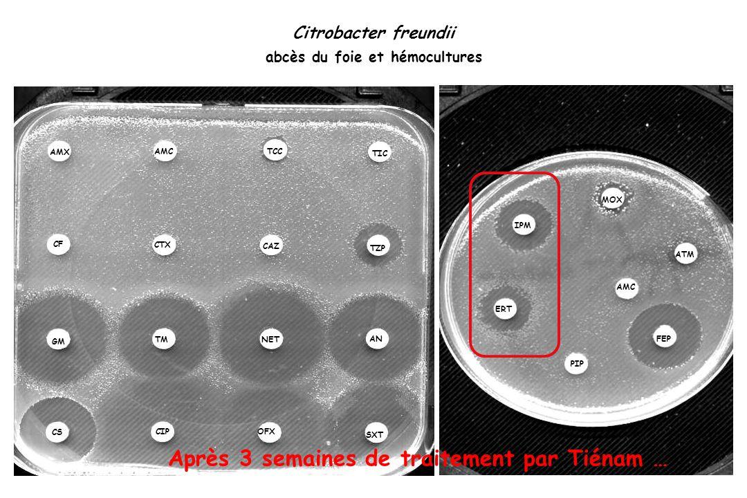 Citrobacter freundii abcès du foie et hémocultures TIC TCC TZP NET AN TM OFX CS SXT CIP IPM MOX ATM FEP AMC PIP ERT AMX TIC TCC TZP NET AN TM OFX CS S