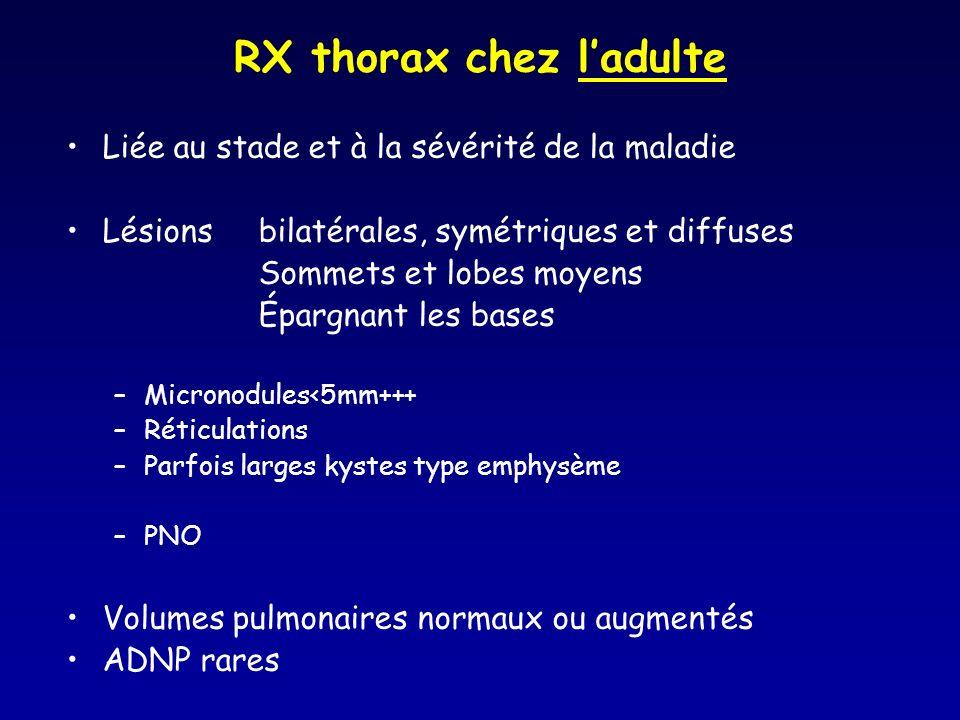 RX thorax chez ladulte Liée au stade et à la sévérité de la maladie Lésions bilatérales, symétriques et diffuses Sommets et lobes moyens Épargnant les