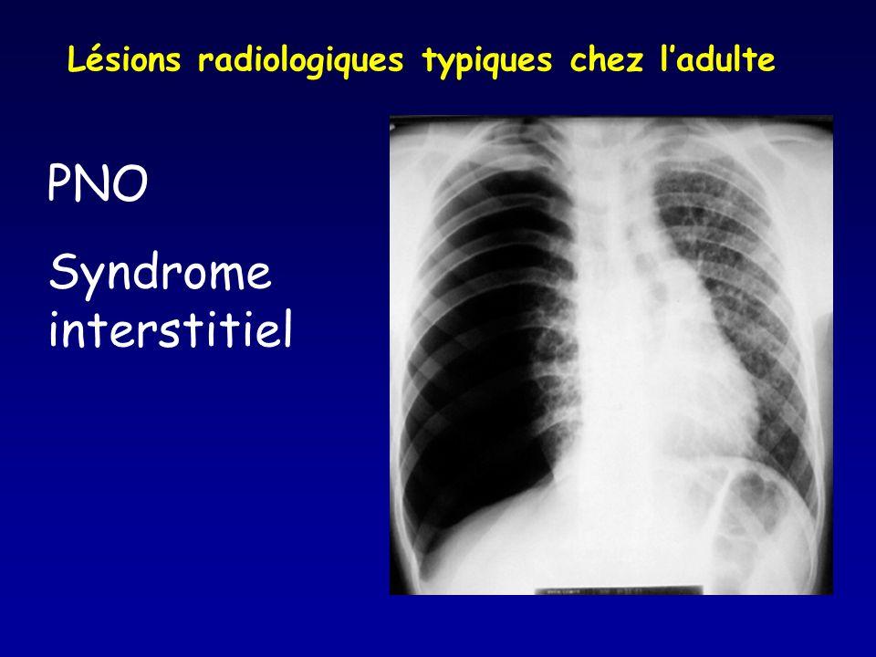 PNO Syndrome interstitiel Lésions radiologiques typiques chez ladulte