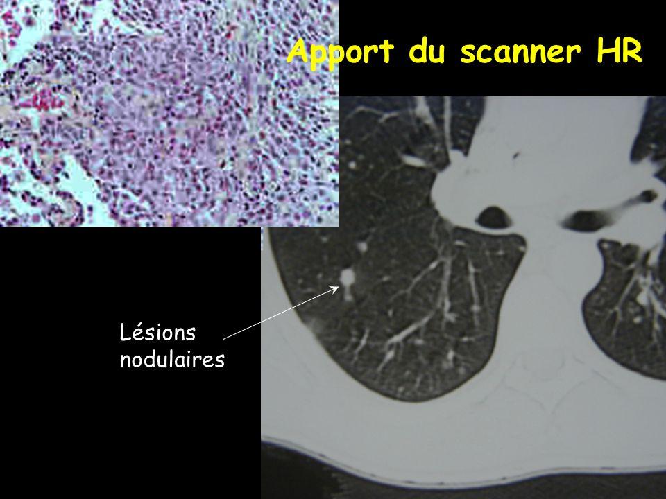 Lésions nodulaires Apport du scanner HR