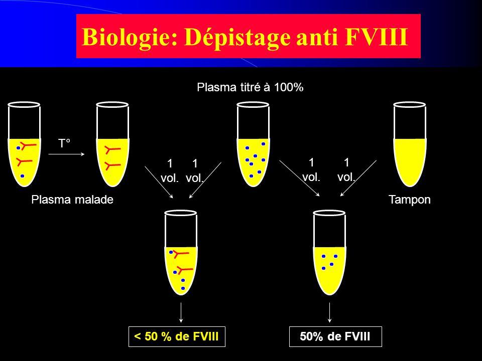Biologie: Dépistage anti FVIII T° 1 vol. Plasma maladeTampon Plasma titré à 100% 50% de FVIII< 50 % de FVIII