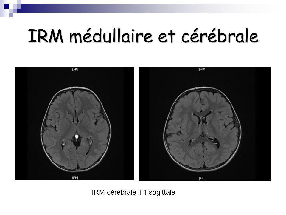 IRM médullaire et cérébrale IRM cérébrale T1 sagittale