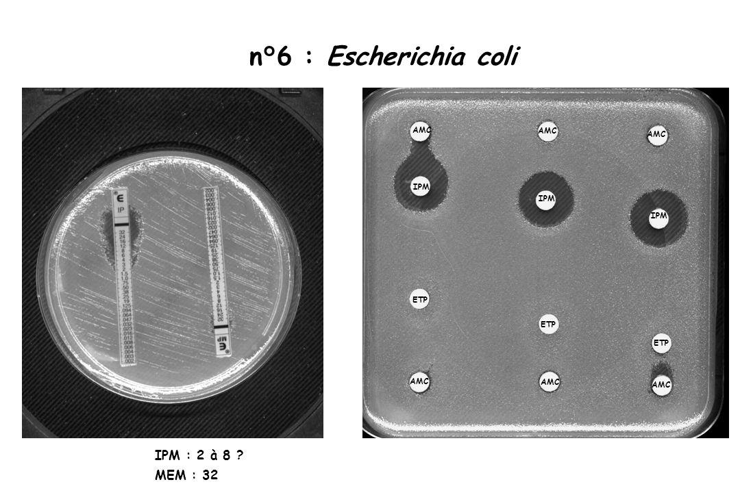 n°6 : Escherichia coli IPM : 2 à 8 ? MEM : 32 AMC ETP IPM ETP IPM