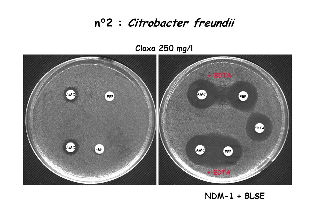 AMC FEP AMC FEP EDTA Cloxa 250 mg/l n°2 : Citrobacter freundii + EDTA NDM-1 + BLSE